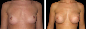 Breast implants - before and after