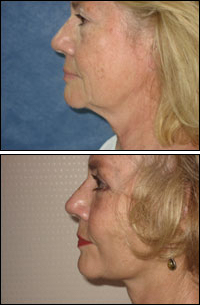 Facelift, before and after treatment