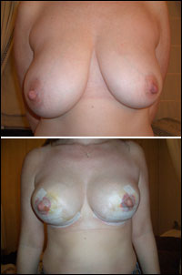 Breast uplift, before and after treatment