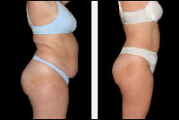 Liposuction - before and after treatment