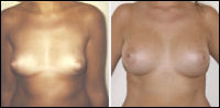 Breast augmentation - before and after treatment