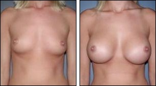 Before and after breast enlargement at Wellness Kliniek