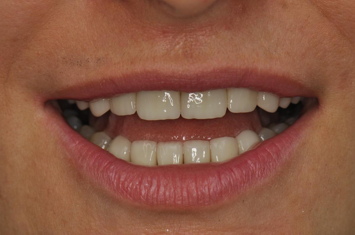 How to choose a dental clinic